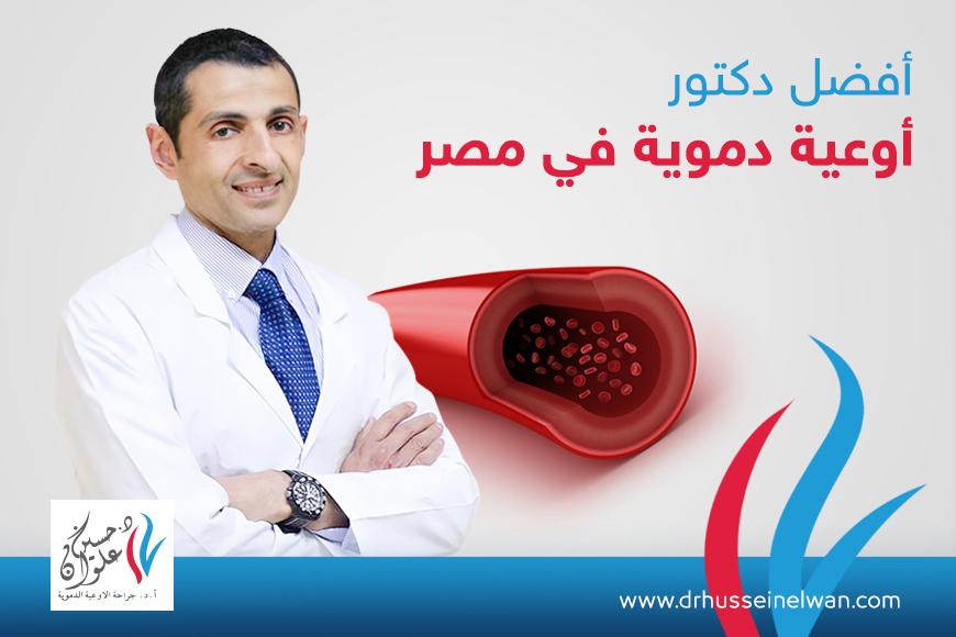 افضل دكتور اوعية دموية في مصر