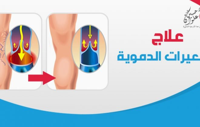 علاج الشعيرات الدموية