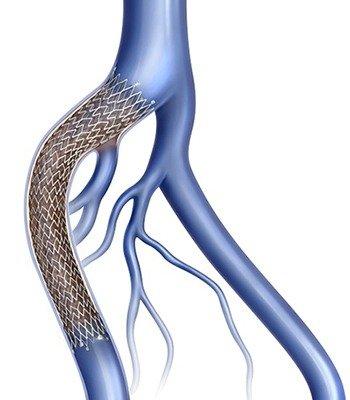 علاج جلطات أوردة الساق العميقة