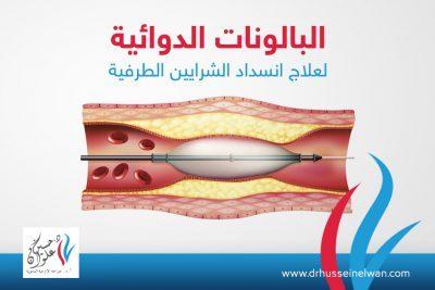 البالونات الدوائية لعلاج انسداد الشرايين