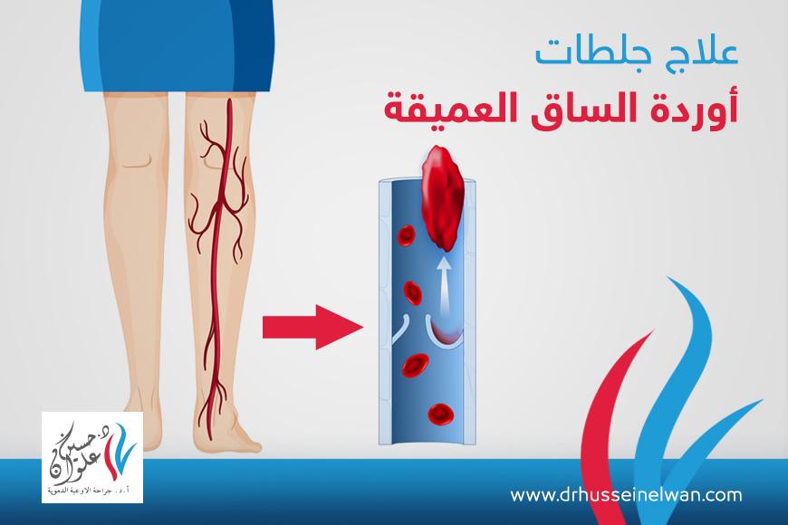 علاج جلطات أوردة الساق